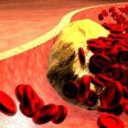 Влияние холестерина на сексуальное влечение